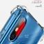 เคสใสกันกระแทก Xiaomi Mi8 PZOZ TPU Case (เคสนิ่ม) thumbnail 8